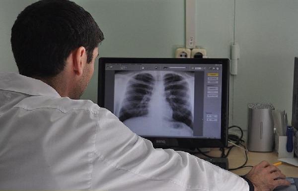 врач, туберкулез